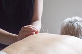 akupunktur-small